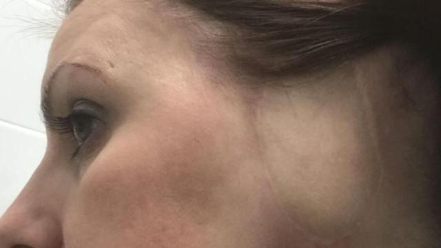 Após desenvolver tumor na orelha, mulher quer banir solários