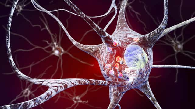 Estilo de vida saudável pode compensar risco genético de Alzheimer