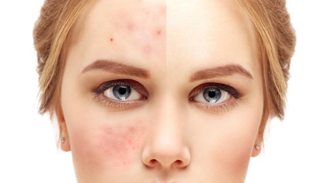 Tem acne? Evite estes cinco alimentos a todo o custo