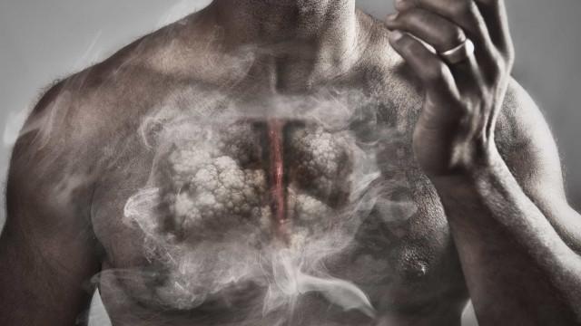 Quatro sinais de que o corpo está a lutar contra cancro do pulmão
