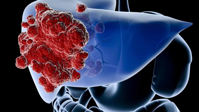 Um em cada 3 portugueses tem fígado gordo, mas não sabe. É o seu caso?