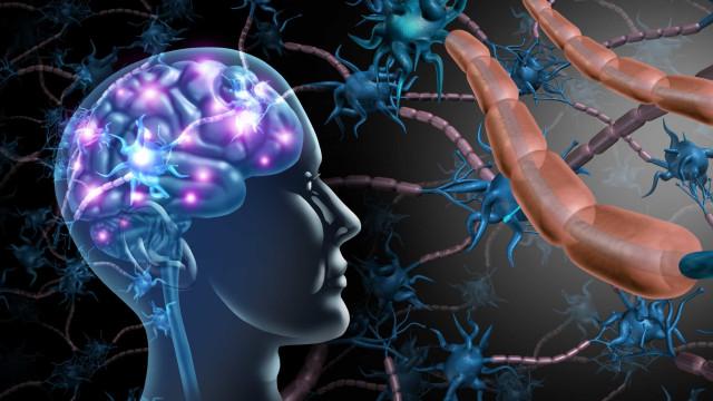 Inteligência Artificial avalia evolução da doença em doentes com EM