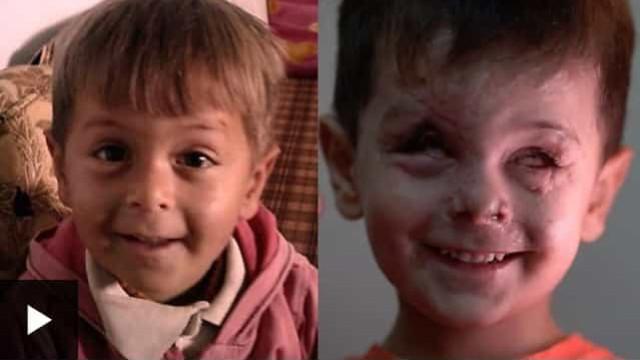Tem apenas quatro anos e o seu rosto tornou-se o retrato da guerra síria