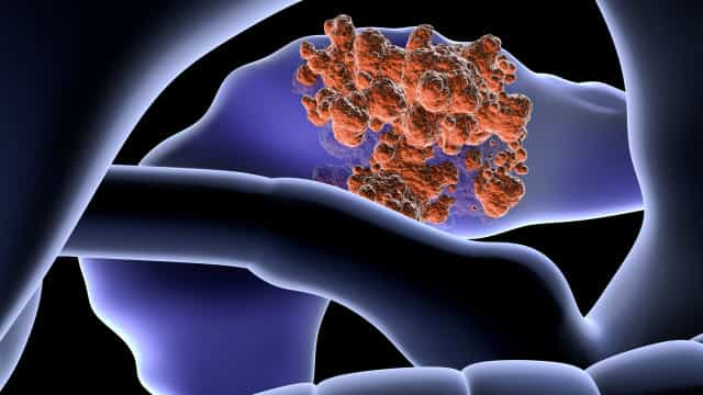 Dez sintomas 'inocentes' que podem indicar cancro do pâncreas