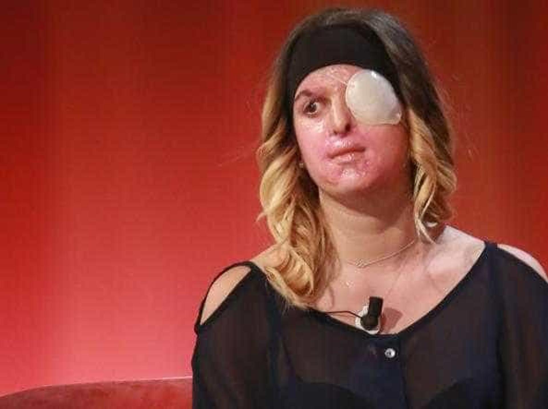Finalista do Miss Itália mostra cara depois de ter sido atacada com ácido