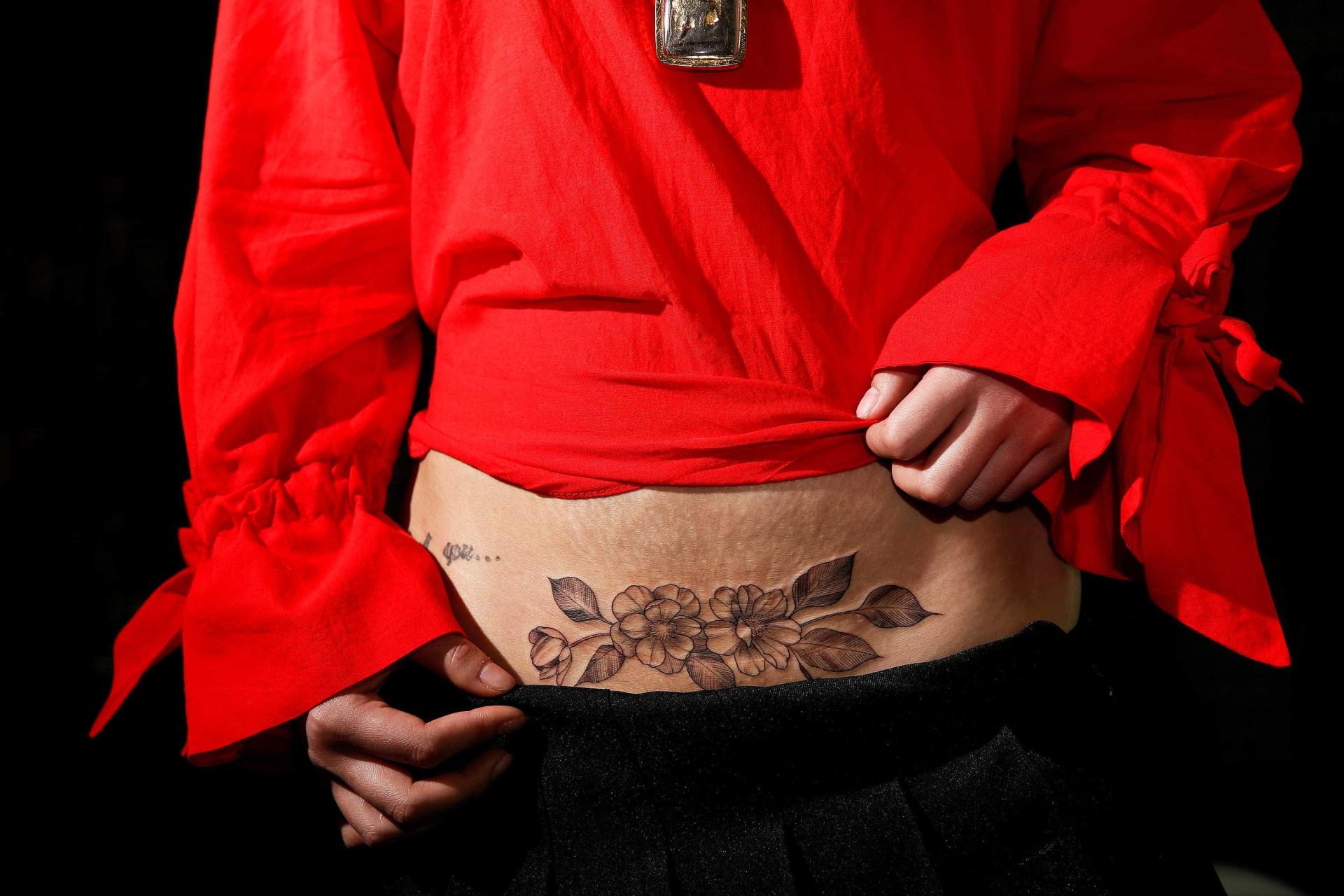 Tatuar a cicatriz da cesariana, uma nova moda