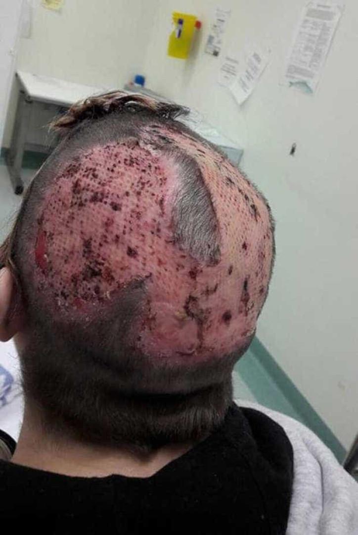 Mulher tenta pintar cabelo em casa e acaba com queimaduras graves
