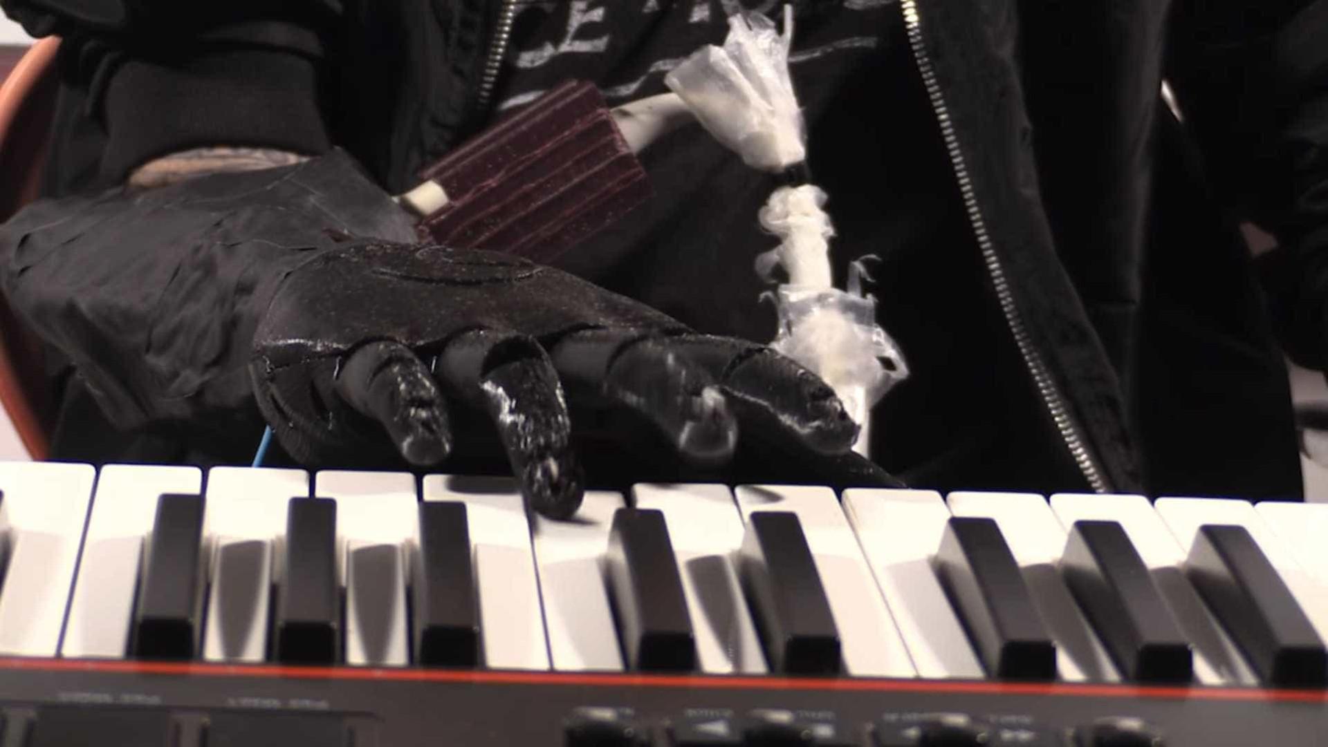 Prótese robótica permite a músico voltar a tocar piano
