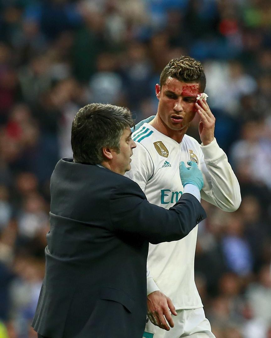 Ronaldo sangrou e foi buscar um... telemóvel
