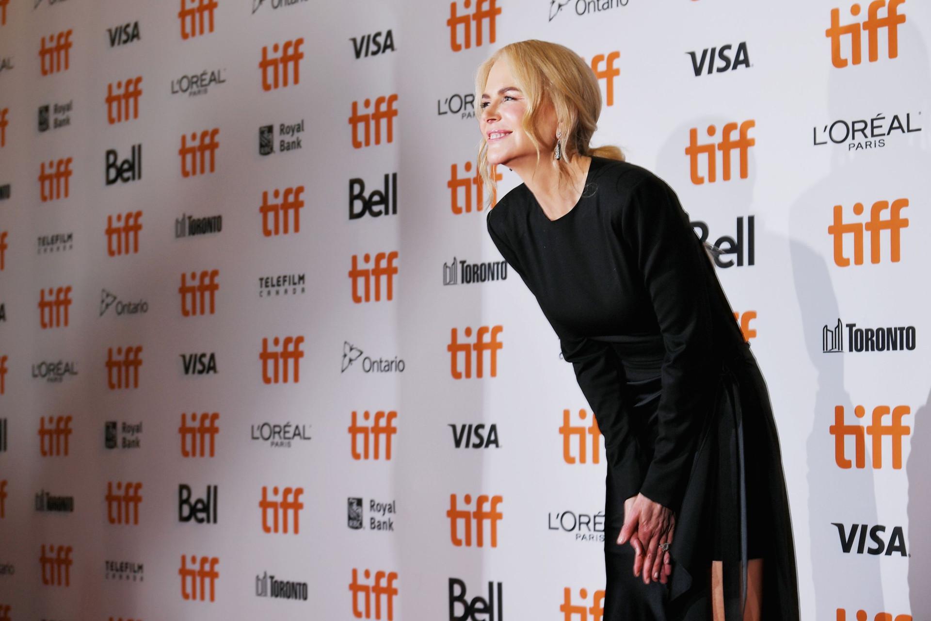 Botox? Eis a 'nova' cara de Nicole Kidman